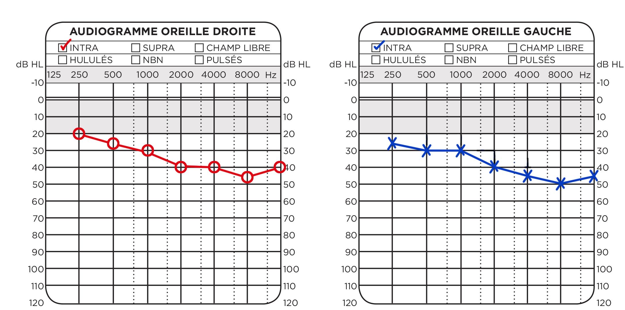 Audiogram Polyclinique De L Oreille